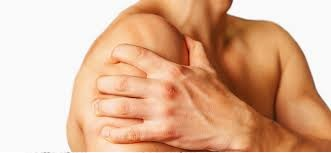 Myofascial Pain Syndrome 1